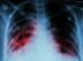 "A ""faster and safer"" therapy against tuberculosis"